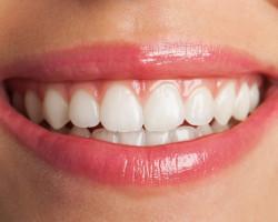 Curiosidades y recomendaciones para tu higiene bucal - Cedane